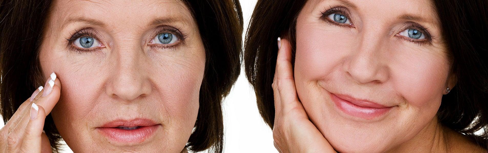 Cirugía para el Envejecimiento Facial - Dr. Alejandro Silvestre