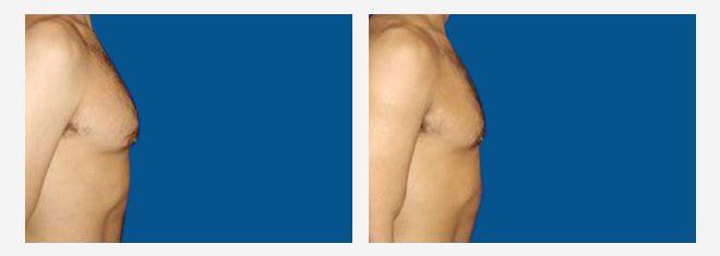Tratamiento de la Ginecomastia - Dr. Alejandro Silvestre