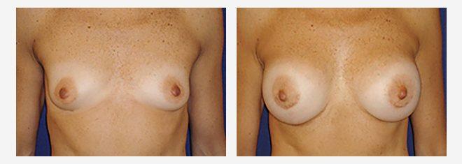 Cirugía de Implantes Mamarios -aumento de mamas - Dr. Alejandro Silvestre