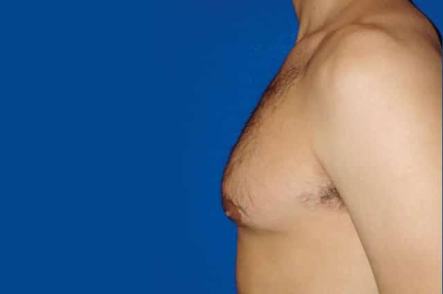 Dr. Alejandro Silvestre, especialista en Cirugía de Ginecomastia (aumento de mamas en el hombre)