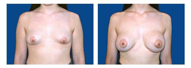 Cirugía de Mamas Tuberosas - Dr. Alejandro Silvestre