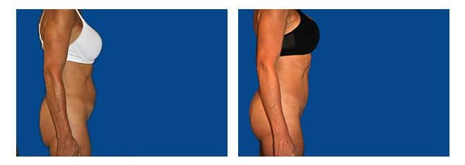 Cirugía de Diastasis de Rectos Abdominales - Dr.Alejandro Silvestre