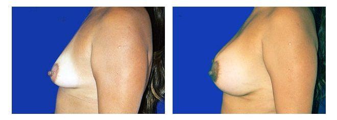 Cirugía de Implantes Mamarios - Dr. Alejandro Silvestre