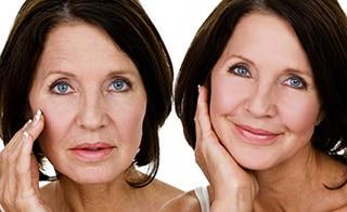 Rejuvenecimiento Facial - Dr. Alejandro Silvestre